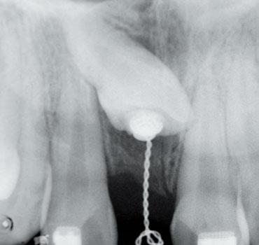 Radiografia mostrando aparato ortodôntico instalado em incisivo superior incluso para tracionamento