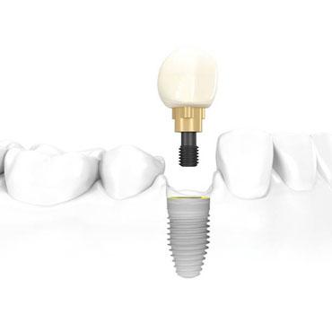Desenho ilustrando um implante dentário com prótese unitária, instalado em mandíbula