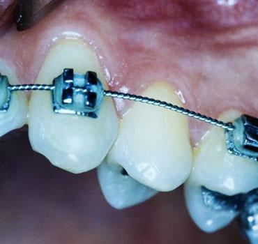 Primeiro pré-molar superior esquerdo com indicação ortodôntica de exodontia.