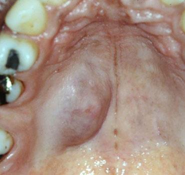 Adenoma pleomórfico em palato duro