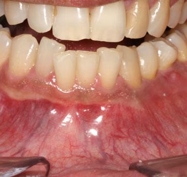 Imagens clínica e tomográfica de um ameloblastoma na mandíbula