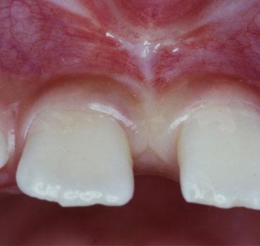 Freio labial superior com indicação de frenectomia. Antes e após  a cirurgia