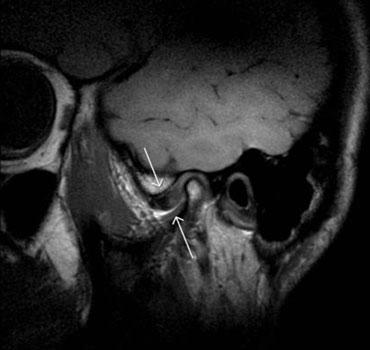 Exame de ressonância magnética mostrando a ATM  com deslocamento anterior do disco articular degenerado (boca fechada) e a falha na recaptura do disco (boca aberta)