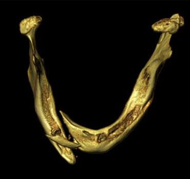 Tomografia computadorizada com reconstrução 3D de um paciente edentado, apresentando fraturas mandibulares