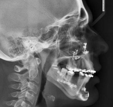 Radiografia de um paciente tratado da Síndrome da Apneia Obstrutiva do Sono, através de cirurgia ortognática