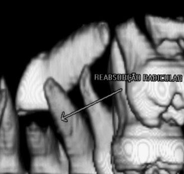 Tomografia mostrando canino superior incluso reabsorvendo dente adjacente