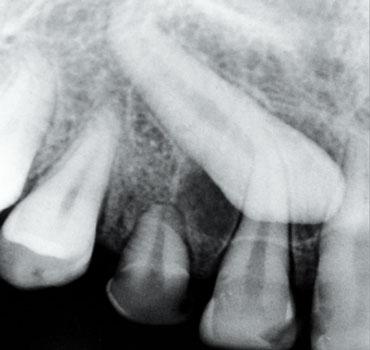 Radiografia mostrando canino superior direito incluso com indicação de tracionamento ortodôntico