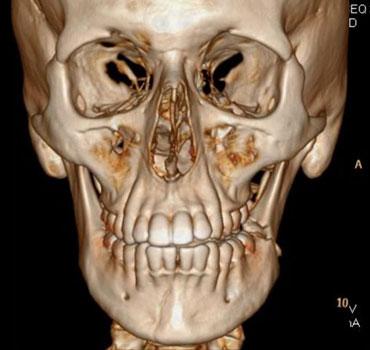 Tomografia computadorizada com reconstrução 3D de um paciente apresentando fraturas mandibulares