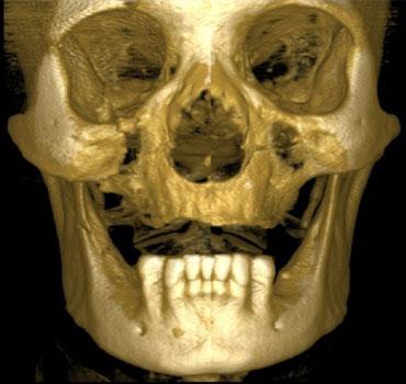 Tomografia computadorizada com reconstrução 3D de um paciente apresentando fraturas do osso zigomático e mandíbula
